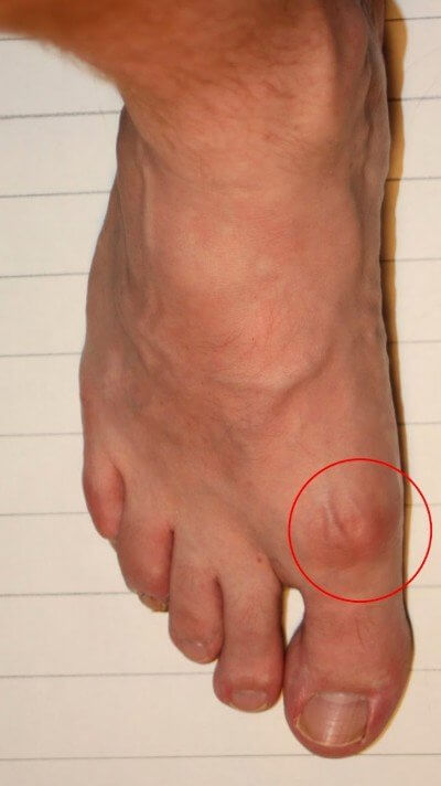 Bone Spur, Bunion, or Gouty Tophus photo?